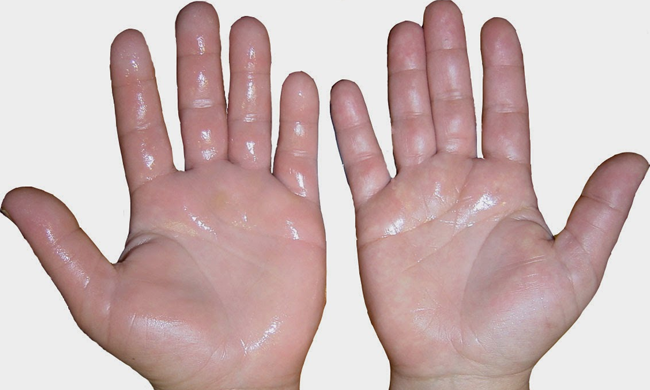 hyperhidrosis treatment