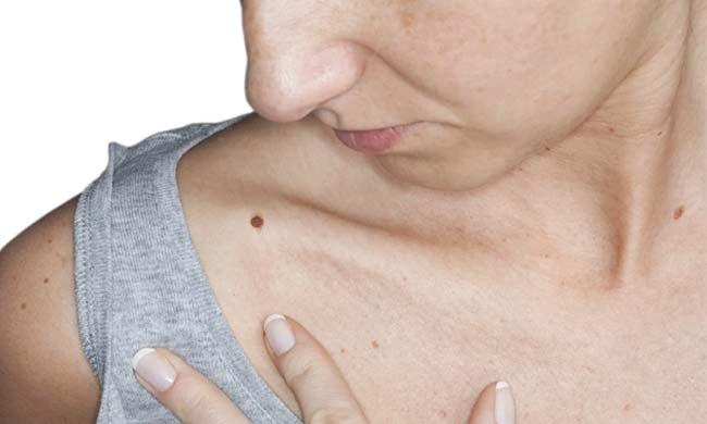 Skintags, Moles, Warts