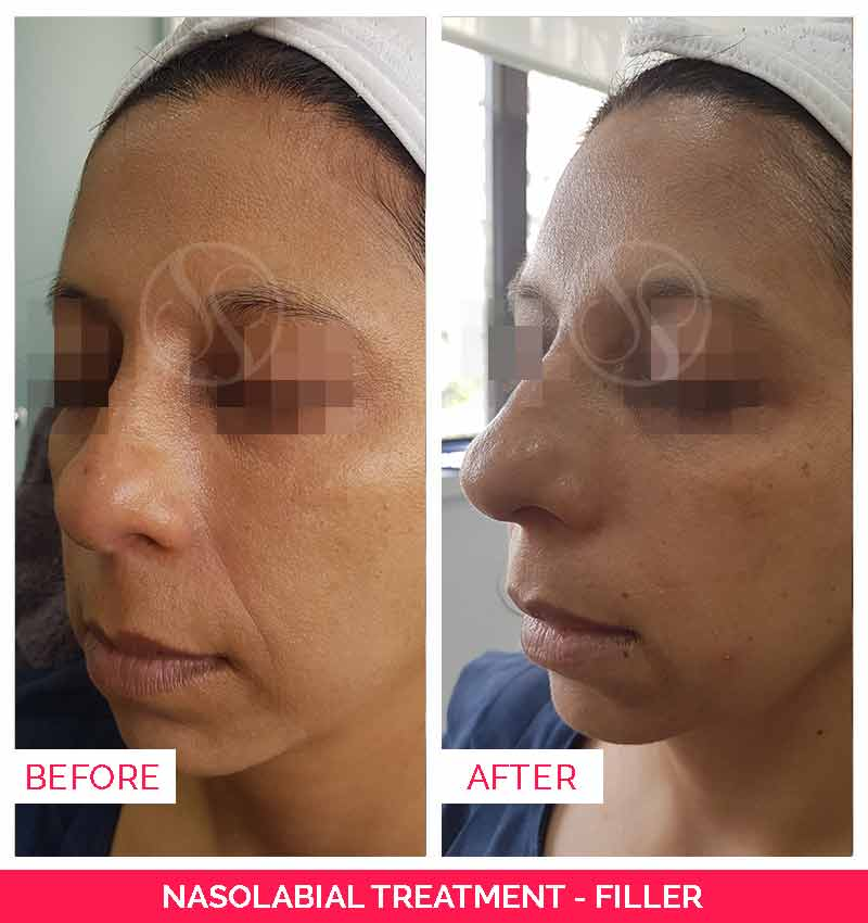 Nasolabial Treatment Before & After