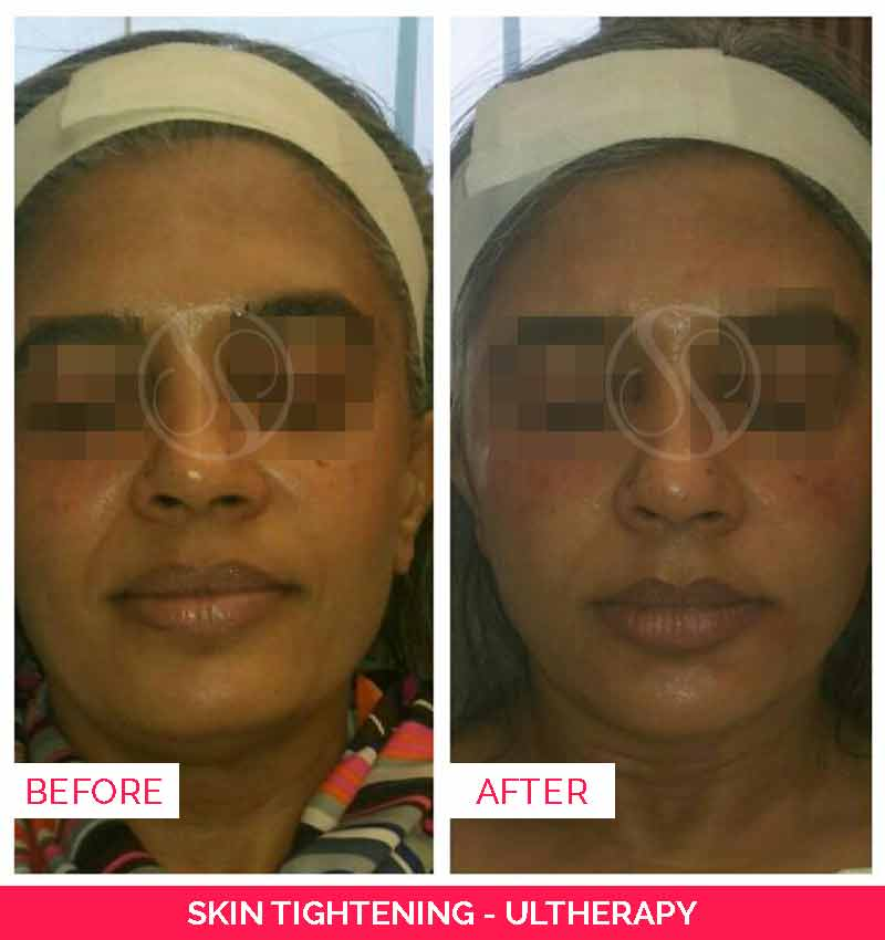 skin tightening-ultherapy before after