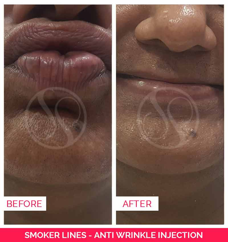 Smokers Lines Treatment Before & After