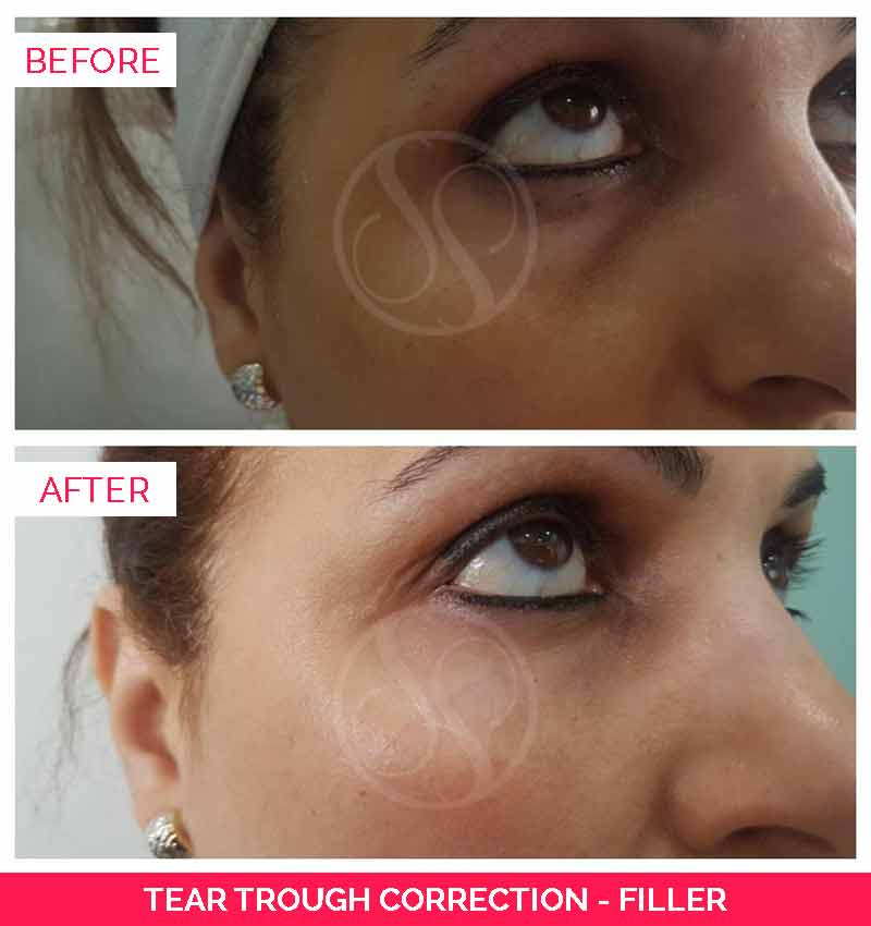 Before and after tear trough fillers