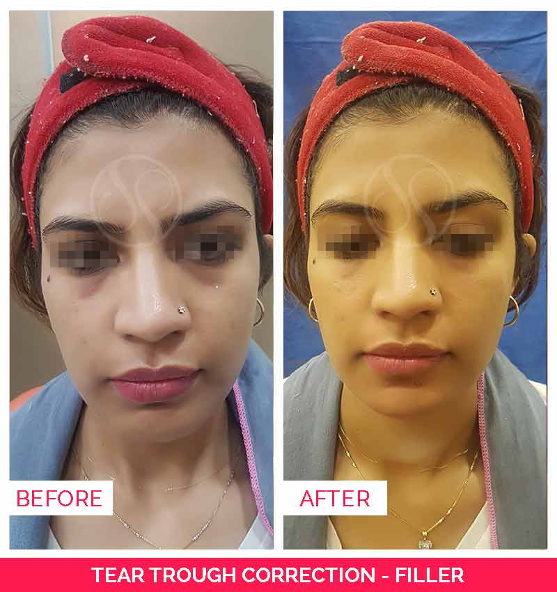 Before and after tear trough correction filler
