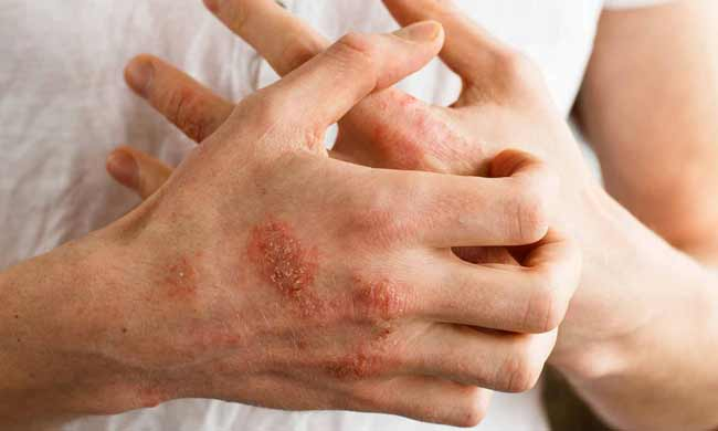 Life with Psoriasis