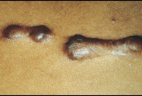 Get Rid of Keloid Scars
